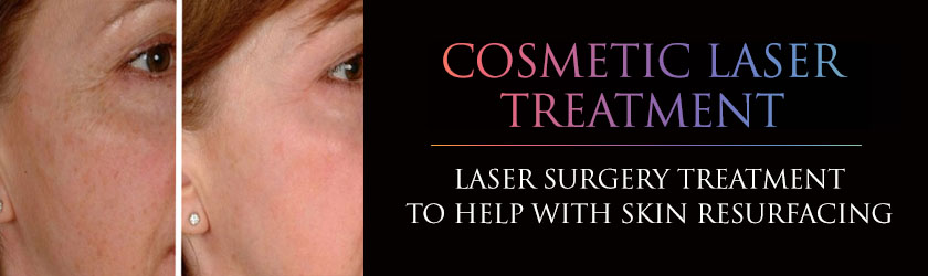 cosmetic laser treatment company London