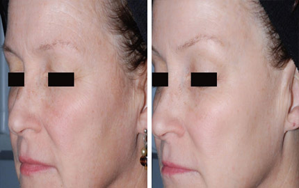 PicoSure Skin Revitalisation