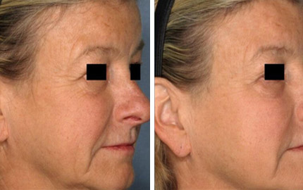 PicoSure Skin Rejuvenation