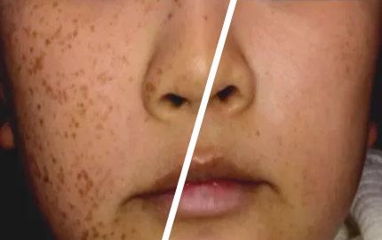 Laser Pigmentation Treatment